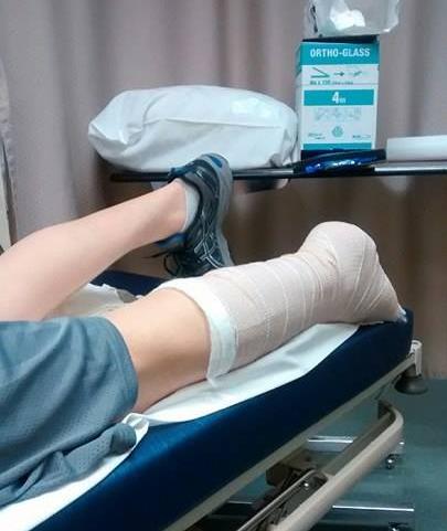 ER - Achilles Rupture